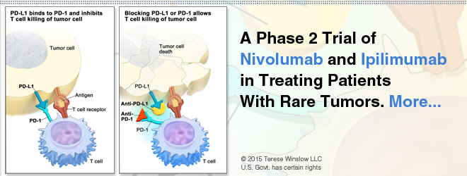 A Phase 2 Trial of Nivolumab and Ipilimumab in Treating Patients With Rare Tumors.